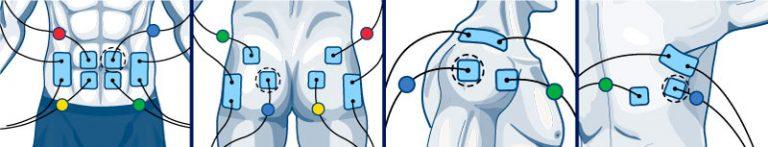 Colocación parches Compex abdominales gluteo hombro y dorsal