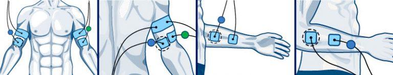 Colocación parches Compex biceps y antebrazo